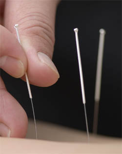 philosophy-acupuncture